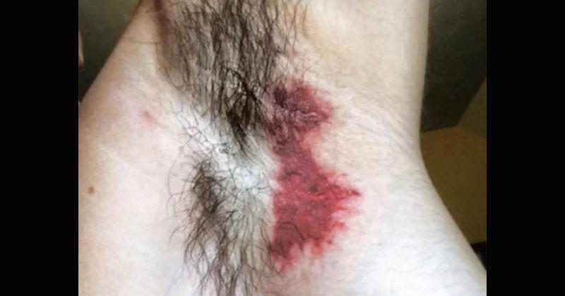 Lawsuit Claims This Deodorant Causes Severe Rashes & Burns